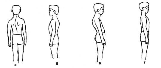 Реферат комплекс упражнений для формирования правильной осанки 7955
